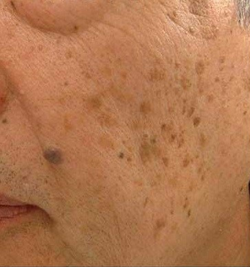 Marvelous Aging Is A Fact Of Life, But We Can Combat The Signs With A Variety Of  Procedures And Treatments. The Typical Light Brown Spots, Sometimes Called  Liver ... Idea