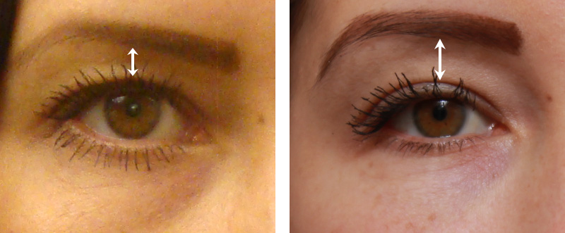 Brow Lift Southern Cosmetic Laser Charleston Botox And Skin Care