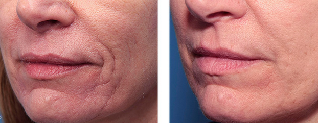 Southern Cosmetic Laser Genius Technology Before and After
