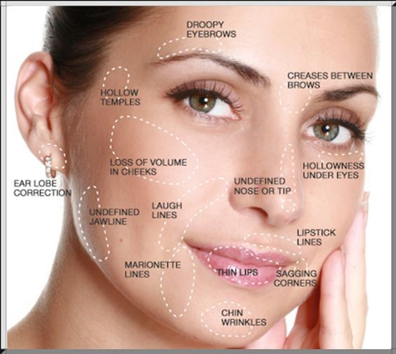 Juvederm Charleston Southern Cosmetic Laser
