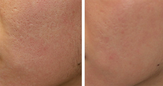 Large Pores Southern Cosmetic Laser Charleston Botox