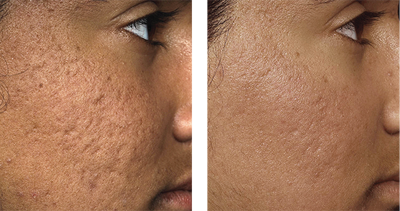 Large Pores Southern Cosmetic Laser Charleston Botox And Skin Care