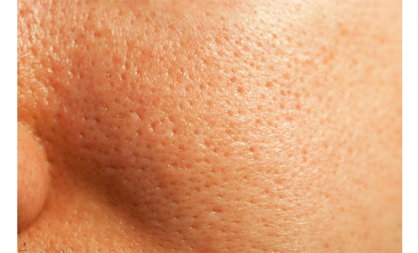 Large Pores Scl Charleston Aesthetics Coolsculpting