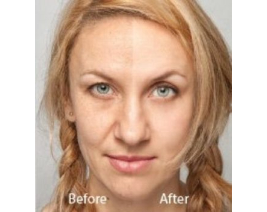 Hollywood laser peel Southern Cosmetic Laser Charleston