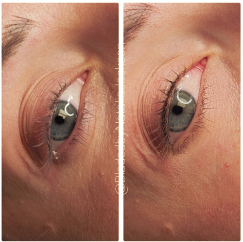 Eyelash Line Enhancement Permanent Makeup Southern Cosmetic Laser Charleston SC
