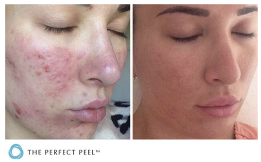 Chemical Peels Southern Cosmetic Center Charkeston