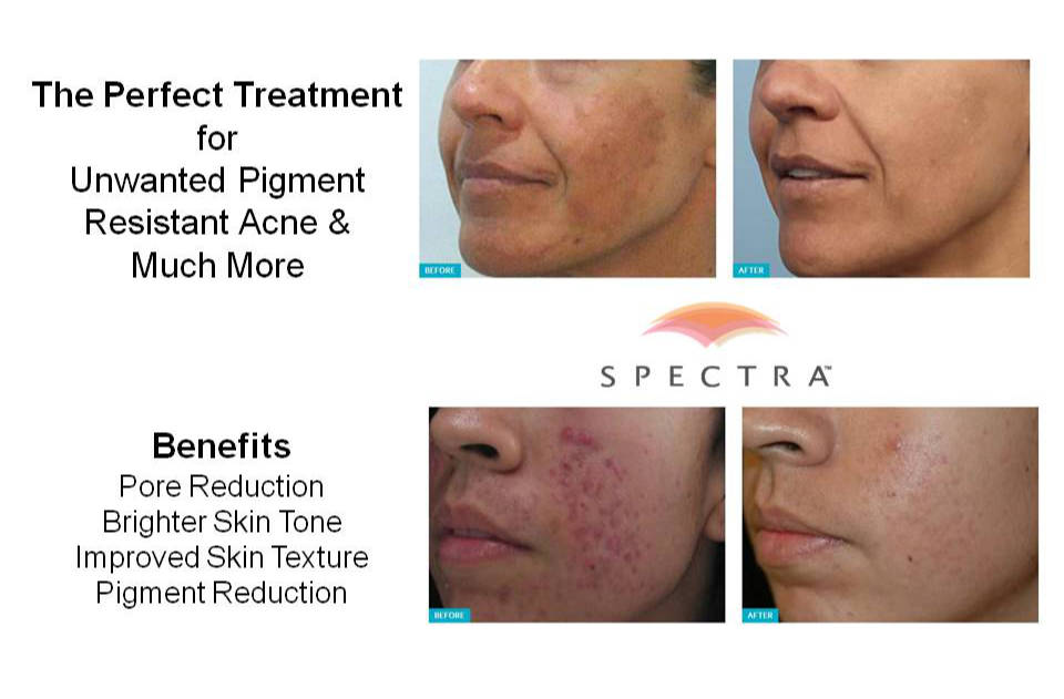 Spectra Laser Southern Cosmetic Laser Charleston