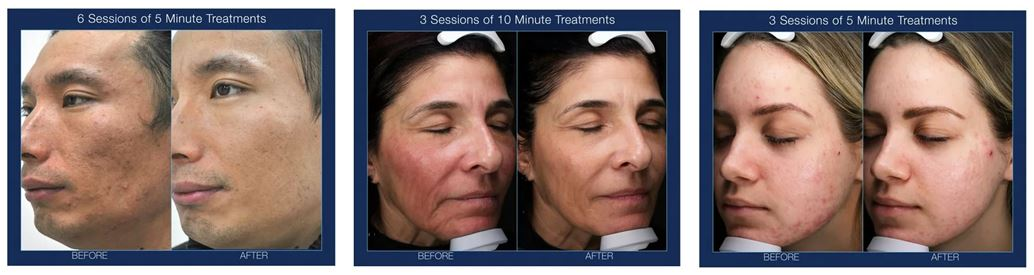 Frozen C Cryofacials Before and After Charleston Southern Cosmetic Laser