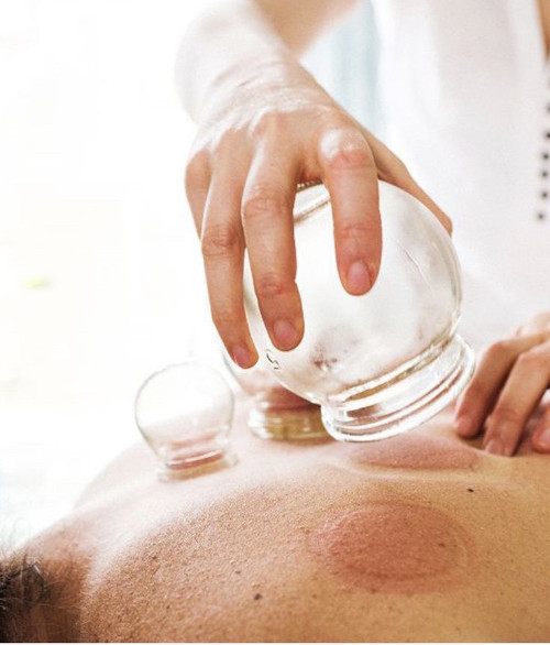 Cupping Massage Therapy Southern Cosmetic Laser Charleston SC