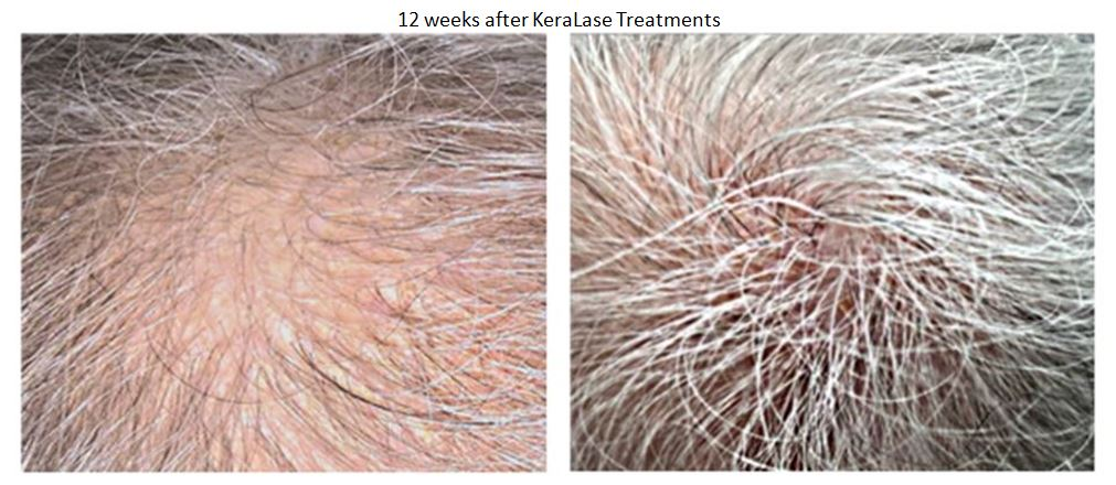 KeraLase Hair Therapy Southern Cosmetic Laser Charleston SC