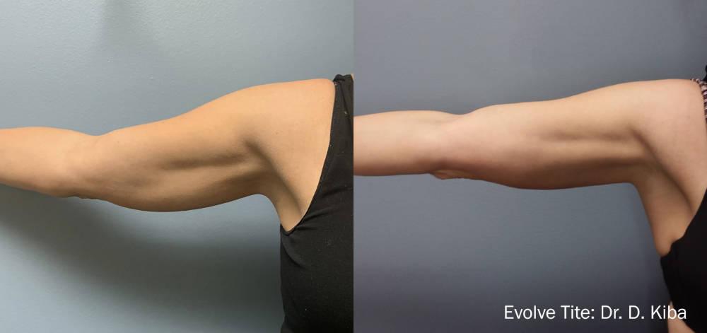 Evolve Arms Fat Reduction Charleston