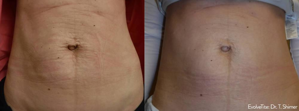 Evolve Abdomen Fat Reduction Charleston