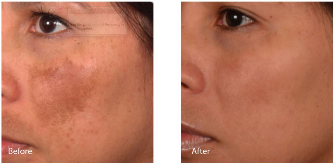 Hollywood Laser Peel Charleston Southern Cosmetic Center