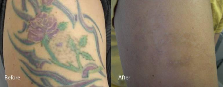 laser tattoo removal Charleston