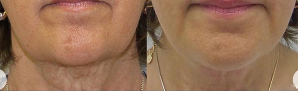 Inmode Evoke facial remodeling Charleston Southern Cosmetic Laser