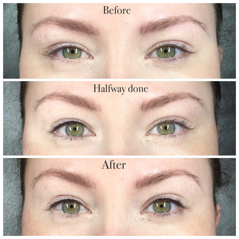 Eyelash Liner Charleston Southern Cosmetic Laser