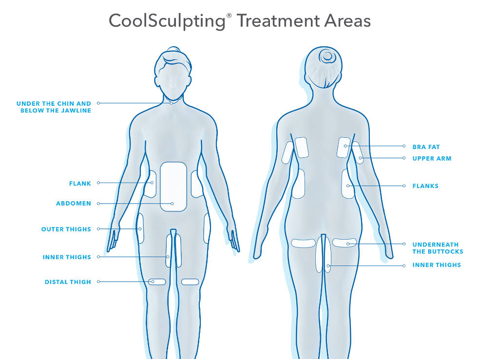 CoolSculpting Treatment Areas Southern Cosmetic Laser Charleston