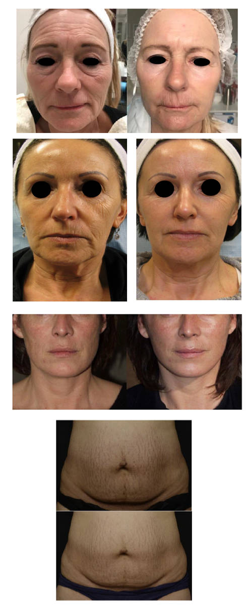 Tixel Skin Treatment Charleston